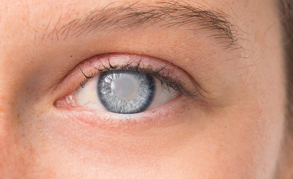 Tròng đen mắt bị đục là biểu hiện của đục thủy tinh thể